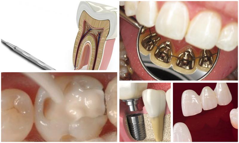 Diş İmplantı Özellikleri