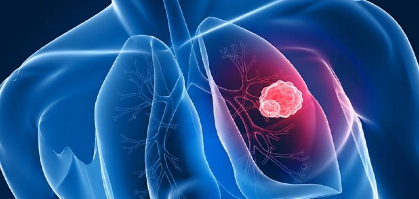 Akciğer Kanserinin Son Evresi 4. Evre Tedavisi Mümkün Müdür?